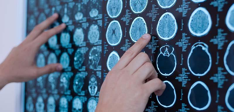 Cancer du cerveau - vaccin