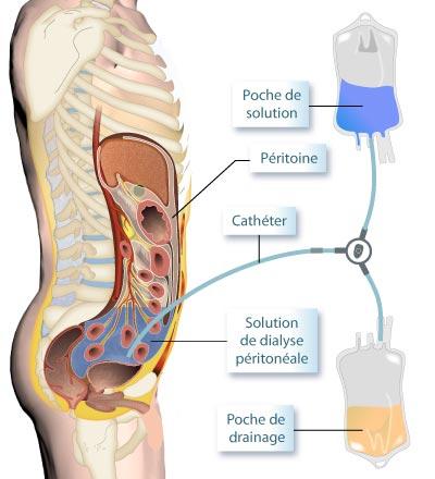 Schéma de dialyse péritonéale