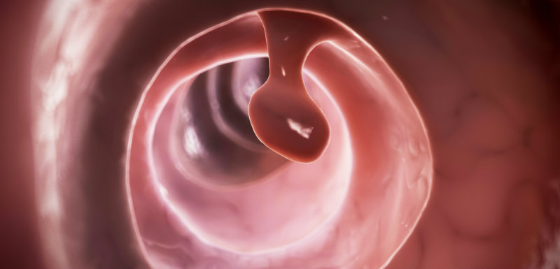 polype, l'intelligence artificielle détecte le cancer colorectal