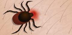 Maladie de Lyme : vers la fin des controverses sur la prise en charge des patients ?