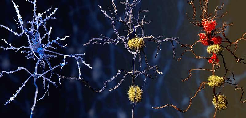 Les 3 stades de la maladie d'Alzheimer
