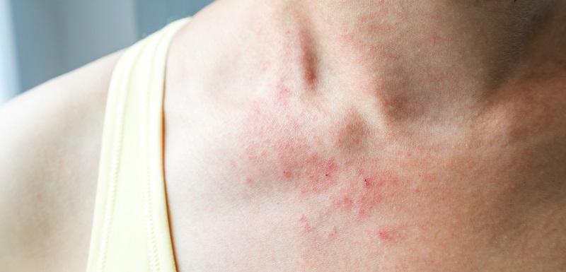 allergies-cutanees