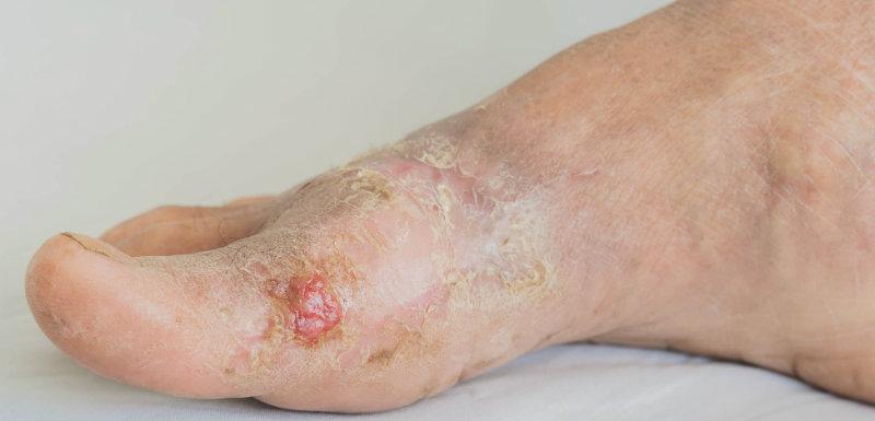 Infections cutanées sur un pied