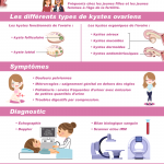 infographie-kyste-ovarien