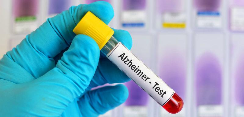 Une prise de sang pour diagnostiquer précocement la maladie d'Alzheimer ?
