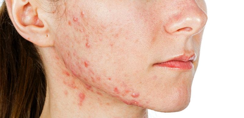 therapie-acne
