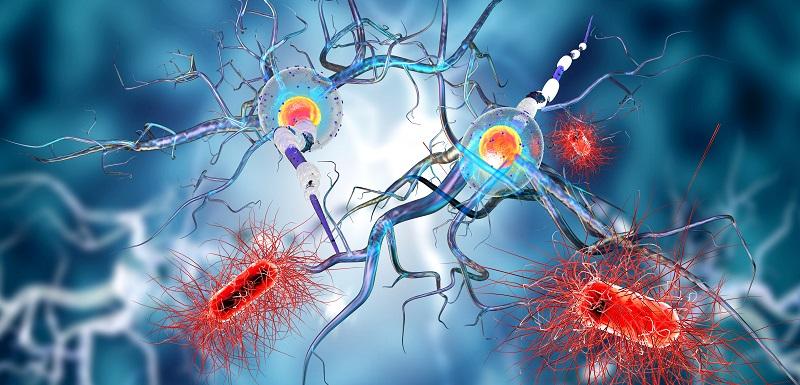 Sclérose en plaques : comment les infections virales infantiles prédisposent-elles à la survenue de la maladie?