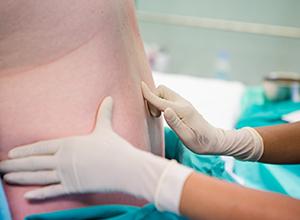 femme-enceinte-spinal-epidural
