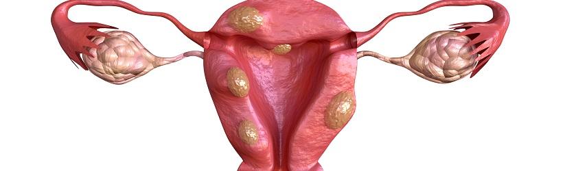 Cancer de l'endometre