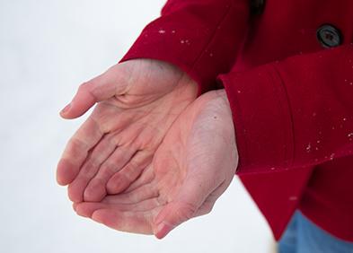 personne-montrant-ses-mains-avec-la-maladie-de-raynaud