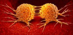 Et si les métastases se formaient avant même que le cancer ne soit détectable…