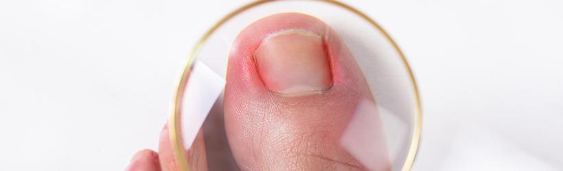 loupe sur un ongle incarné du pied