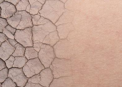 peau craquellée