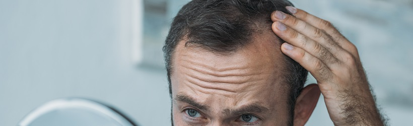 alopecie-img
