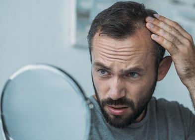 Homme avec alopécie