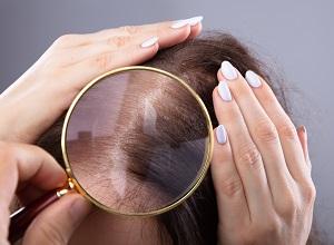 alopecie-traitement