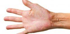 Bientôt un nouveau médicament contre l'eczéma des mains ?