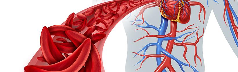 Blocage circulation sanguine par des cellules faucille dû à des cardiopathies congénitales