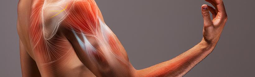 homme avec le bras tendu ayant la maladie de kennedy