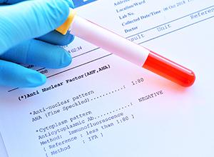 Résultat de laboratoire de test de facteur antinucléaire pour détecter la dermatomyosite