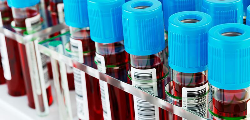 Tubes à essai rempli de sang et échantillons de rack pour se faire vacciner