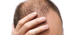 Chute de cheveux : l'ANSM met en garde les hommes utilisant le finastéride