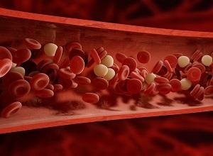 histiocytose-cellules-sanguines
