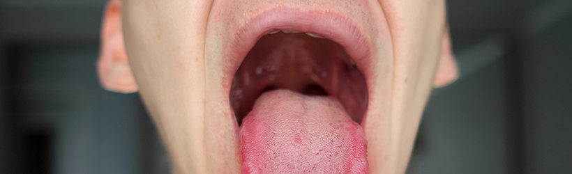 Douleur de la gorge chez un homme à cause de leucoplasie