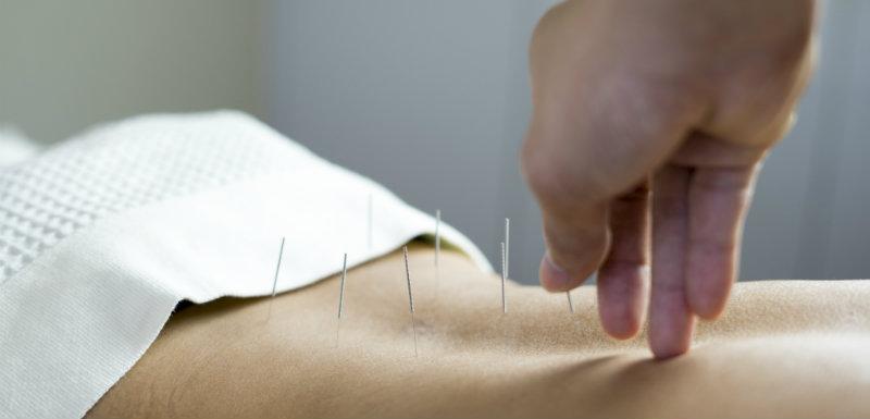 acupuncture-douleur-cancer