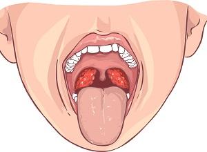 amygdalite-symptomes
