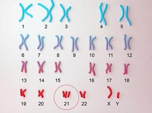 caryotype-humain-trisomie