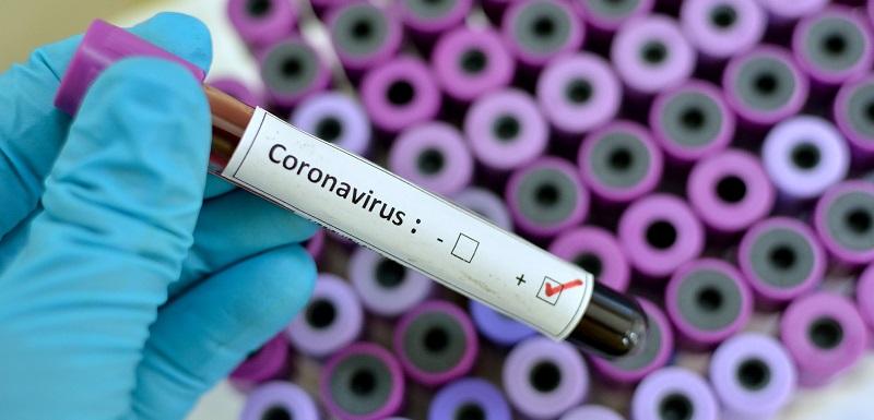 Que sait-on sur le coronavirus qui nous effraie tant ?