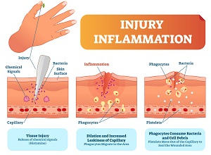 inflammation-3