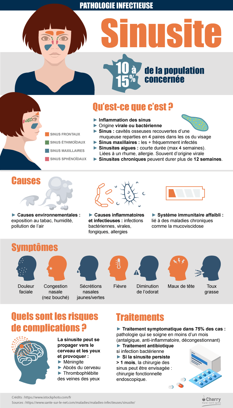 La sinusite en France