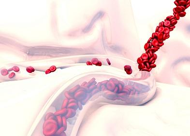 Ecchymoses et hémorragies