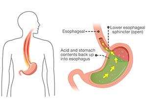 Schéma représentant le reflux gastro-œsophagien