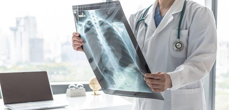 Cancers pulmonaires : des avancées dans les traitements personnalisés