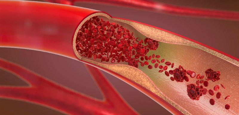 Du nouveau sur la composition du sang …