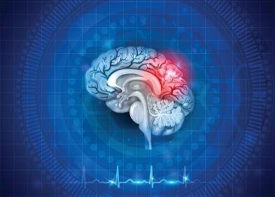 Gliome infiltrant du tronc cérébral