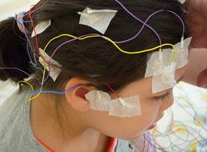 Electrodes sur la tête d'un enfant