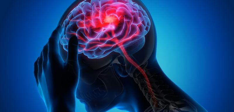 Retrouver sa mobilité après un AVC grâce au neurofeedback