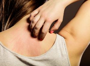 acanthosis-nigricans-symptomes