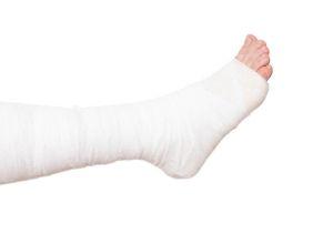 arthrogrypose-articulation-traitement