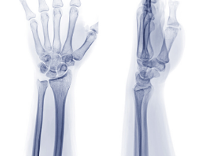 dysplasie-fibreuse-poignet