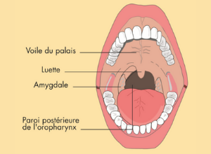 angine-pulcatee