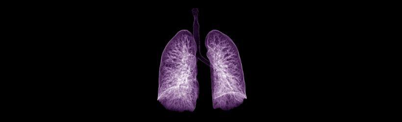 cancer-de-la-plevre-poumons