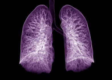 Cancer de la plèvre