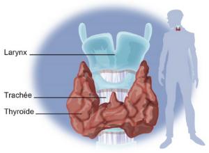 schema-tyroide-cancer