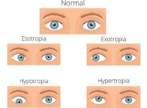strabisme-oculaire-symptomes