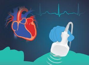 deroulement-examen-echocardiographie